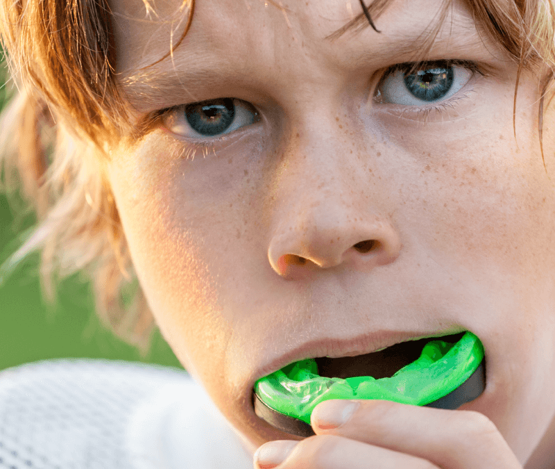 Mouthguards for Football, Soccer, and Other Sports