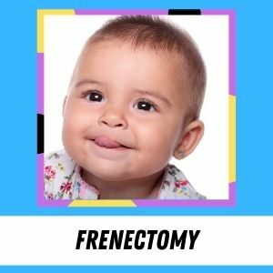 A baby girl pokes her tongue out of her lips. The label says: Frenectomy